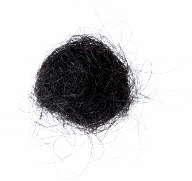 The 9 lbs. mass had accumulated after years of eating hair from carpets. (Photo: Thinkstock)